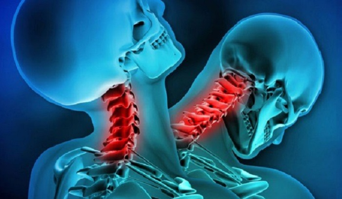 A 20-year-old Chinese resident has been reeling on two ankylosing spondylitis 74