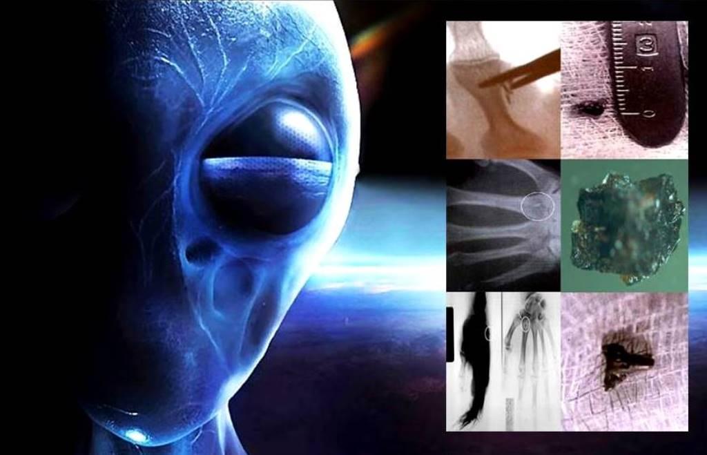 Alien Abductee implants deserve a thorough study! 31